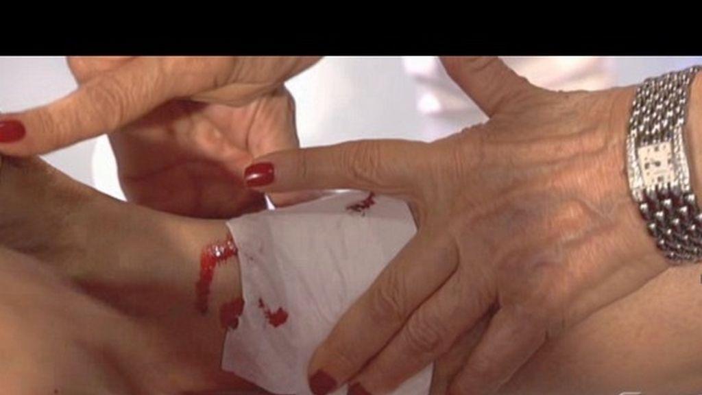 Karmele herida