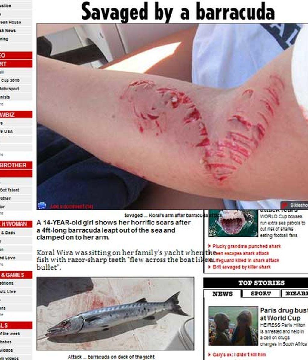 La barracuda le dejó una gran marca en el brazo de Koral