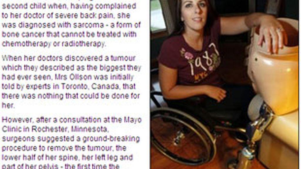 Imagen de Janis tras la operación. Foto: Daily Mail.