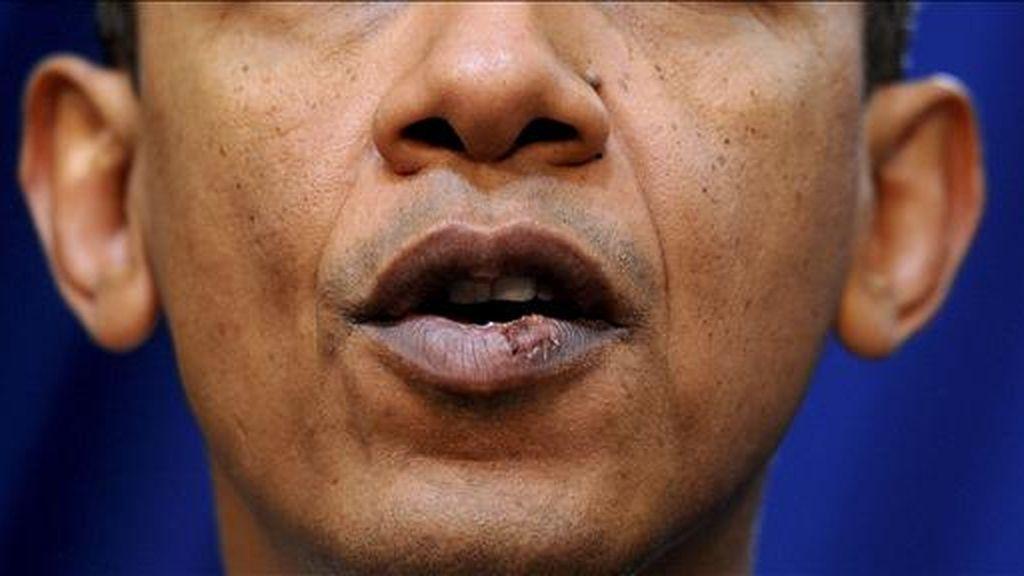 Detalle de los labios del presidente estadounidense, Barack Obama, durante una rueda de prensa, el pasado 30 de noviembre. Obama resulto herido el fin de semana, tras recibir un codazo, cuando jugaba baloncesto. EFE/Archivo