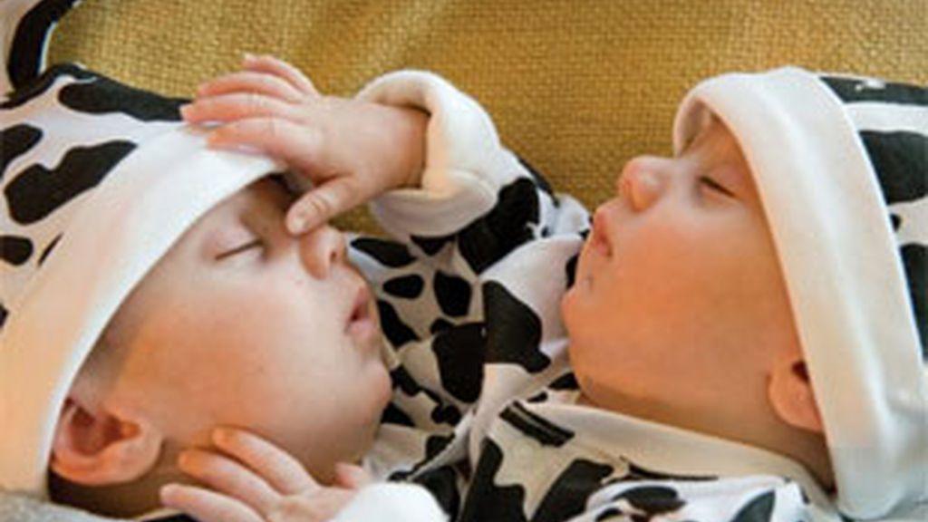 Hassan y Hussein nacieron unidos por el pecho. Foto: Belfast Telegraph