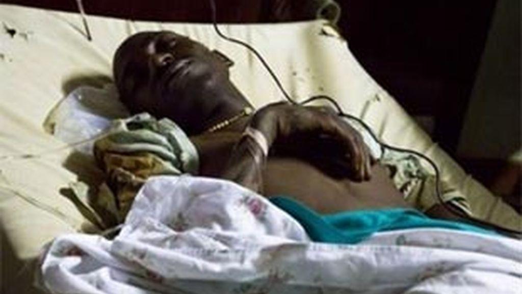 Uno de los heridos en el triple atentado de Uganda. Foto: AP