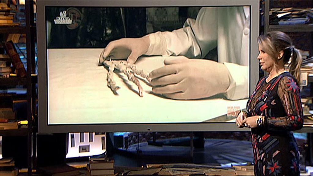 Tijeras en el estómago y la mano del extraterrestre, en 'Mundo Insólito'