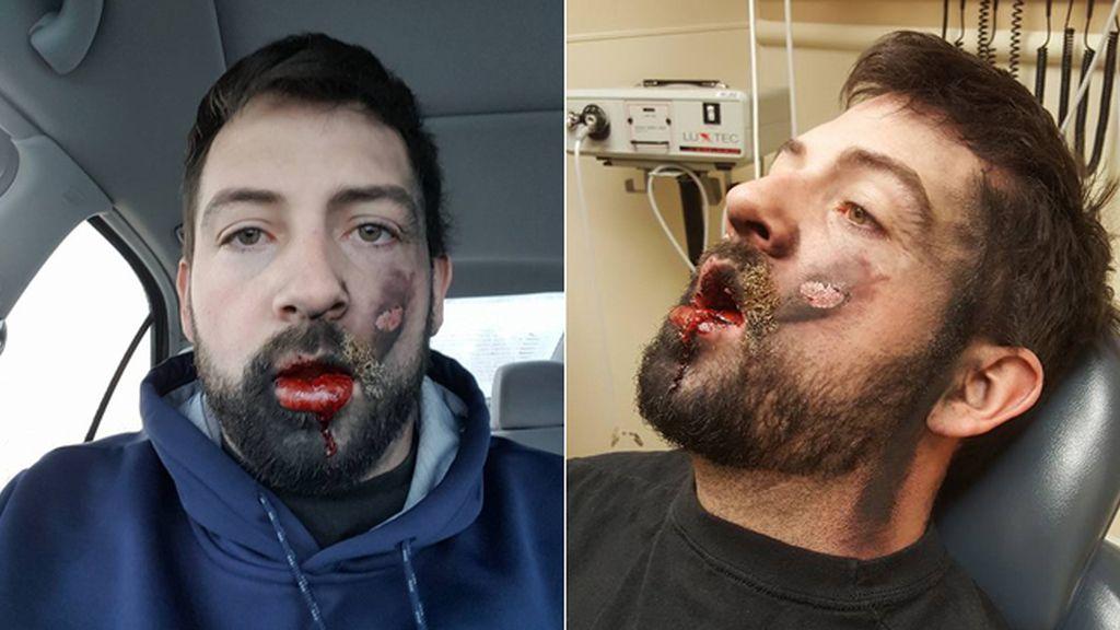 La cara destrozada y siete dientes menos tras explotarle un cigarrillo electrónico en la boca