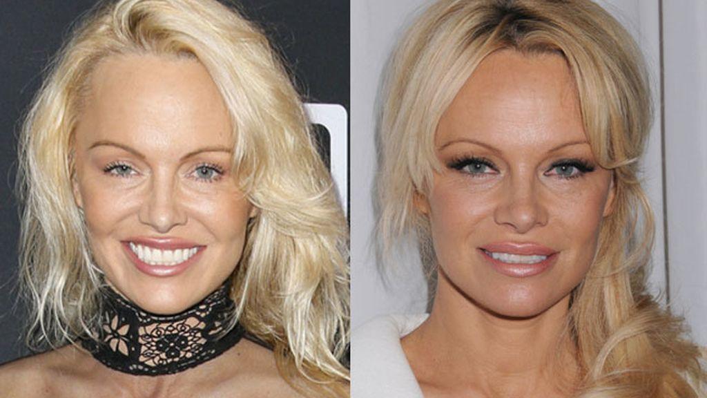 Pamela Anderson, cirugía estética Pamela Anderson