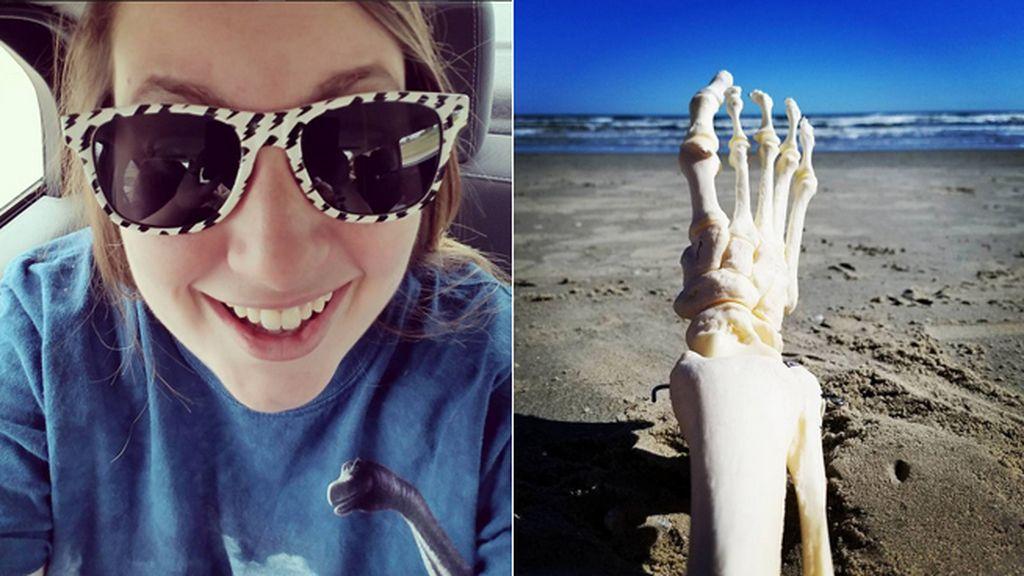 Las aventuras de una joven tras superar el cáncer junto a su pie amputado cautivan Instagram