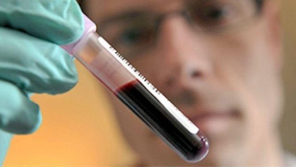 Imagen de archivo de un test de sangre