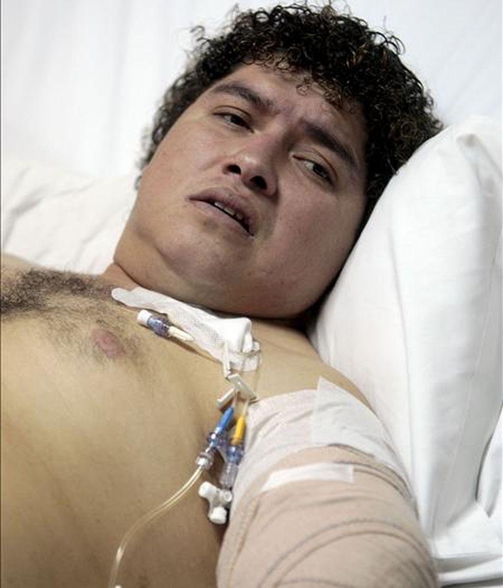 Franns Rilles Melgar, el hombre de 33 años de edad y de origen boliviano, que sufrió la amputación del brazo izquierdo mientras se encontraba trabajando de madrugada en la panificadora, situada en Real de Gandia (Valencia), reposa en el hospital Virgen del Consuelo de la capital valenciana. EFE/Archivo