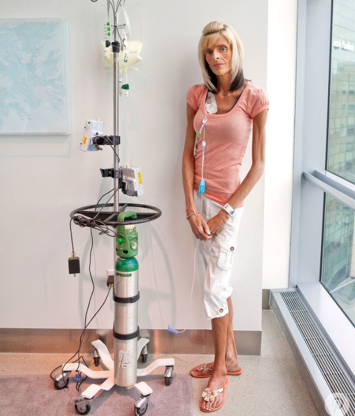 Lisa Brown,enferma gastroparesia,enfermedad rara estómago,Lisa Brown enfermedad rara