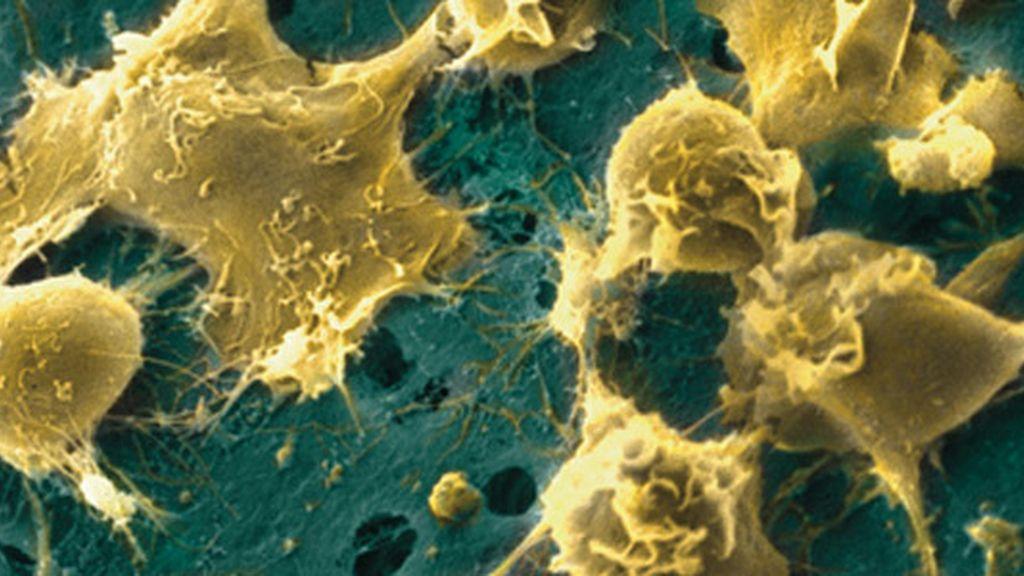 celulas madre 1