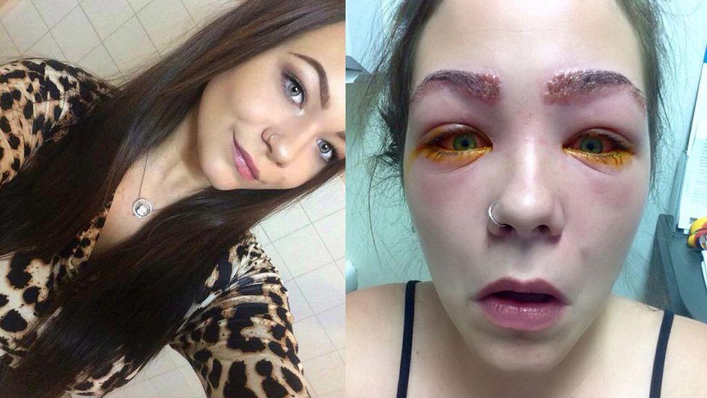 Una adolescente a punto de quedarse ciega después de teñirse las cejas