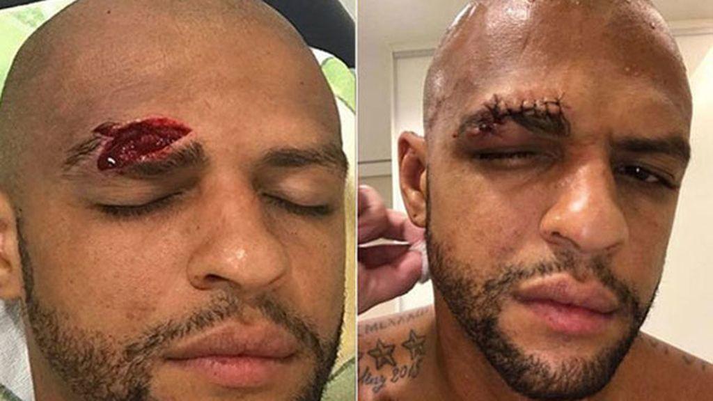 Felipe Melo herida
