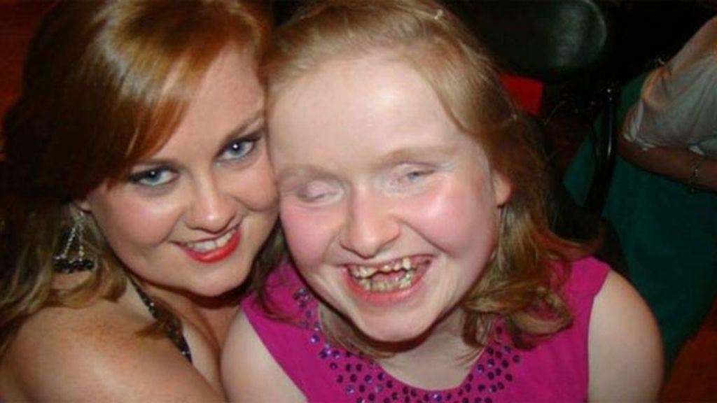 La desesperada petición de una madre para su hija enferma de escoliosis