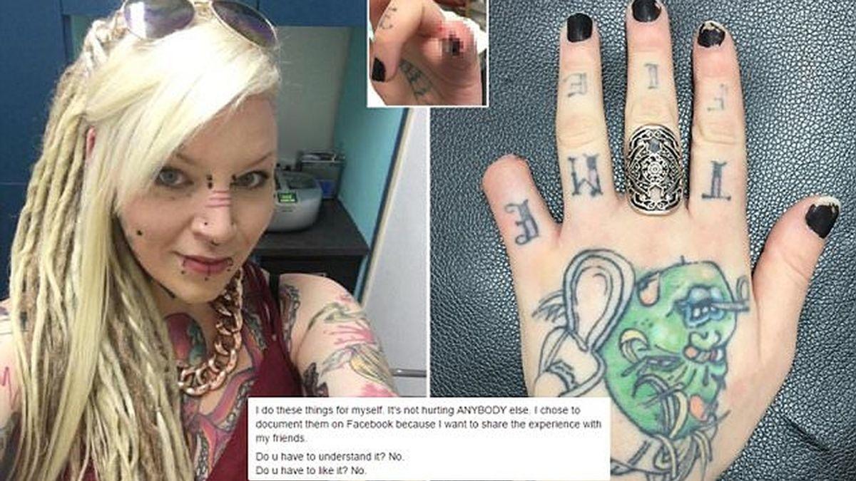 """Una mujer se corta el dedo meñique """"porque quería"""" y """"luce bien"""""""