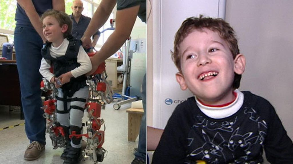 Un exoesqueleto para Álvaro, el pequeño que puede volar... pero sueña con andar
