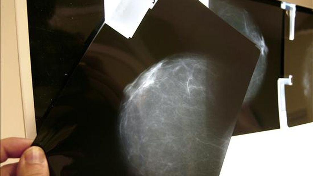 Imagen de una prueba radiológica de mama. Un informe, realizado por científicos de la Universidad de Stanford, señala que el uso de la terapia hormonal aumenta el peligro de sufrir cáncer de mama. EFE/Archivo