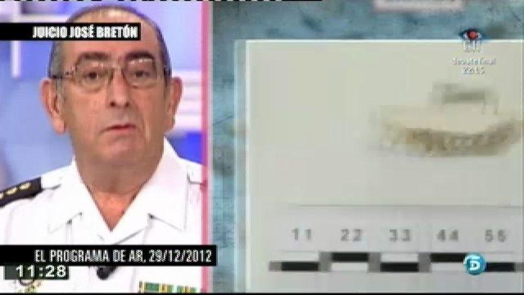 Según Castro, Etxeberría, al ver las fotos de los huesos, dijo que le parecían restos humanos