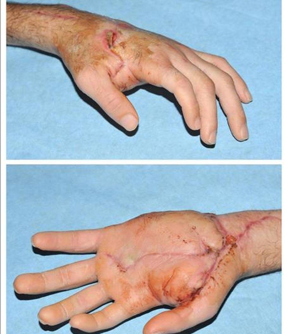 Vista de la mano derecha, un mes después de que le fuera reimplantada en el brazo izquierdo, a un hombre que cayó al Metro y sufrió la amputación de ambas manos y que diez meses después ya puede usar el móvil y beber por sí mismo. EFE