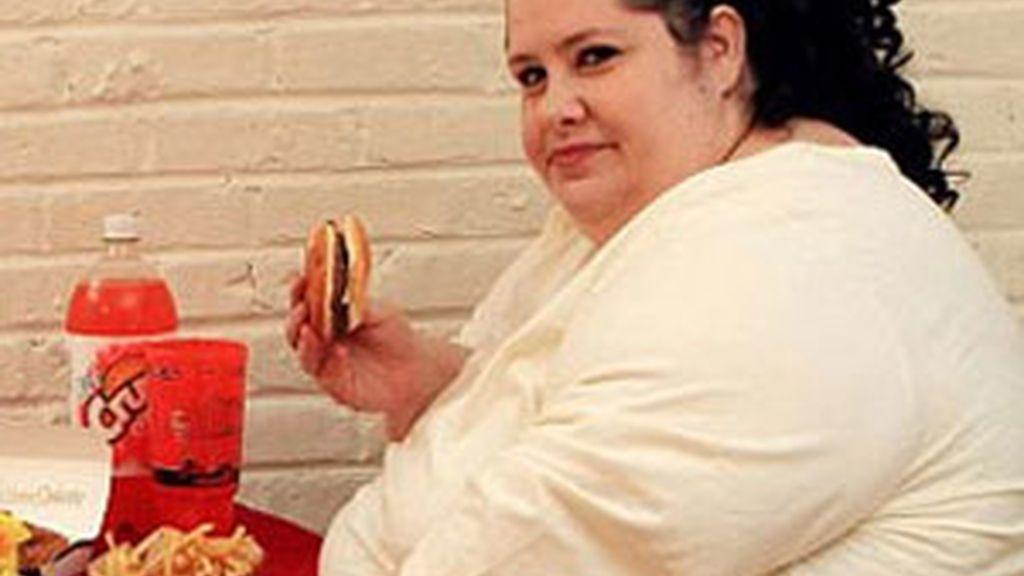 Los pacientes obesos necesitan estímulos para cambiar su estilo de vida y perder peso. FOTO: EFE / Archivo