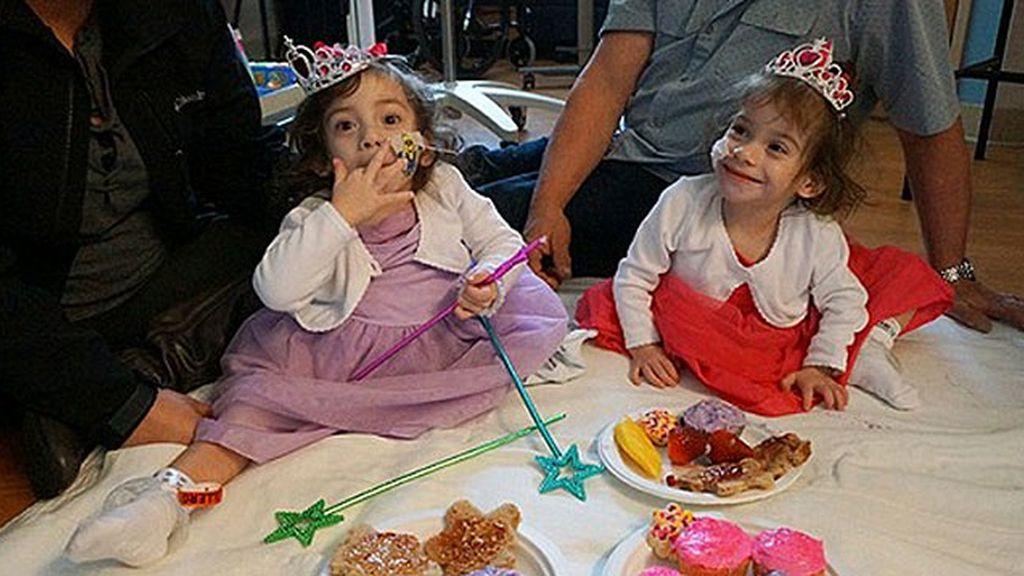 El dulce cumpleaños de unas pequeñas siamesas tras la arriesgada separación