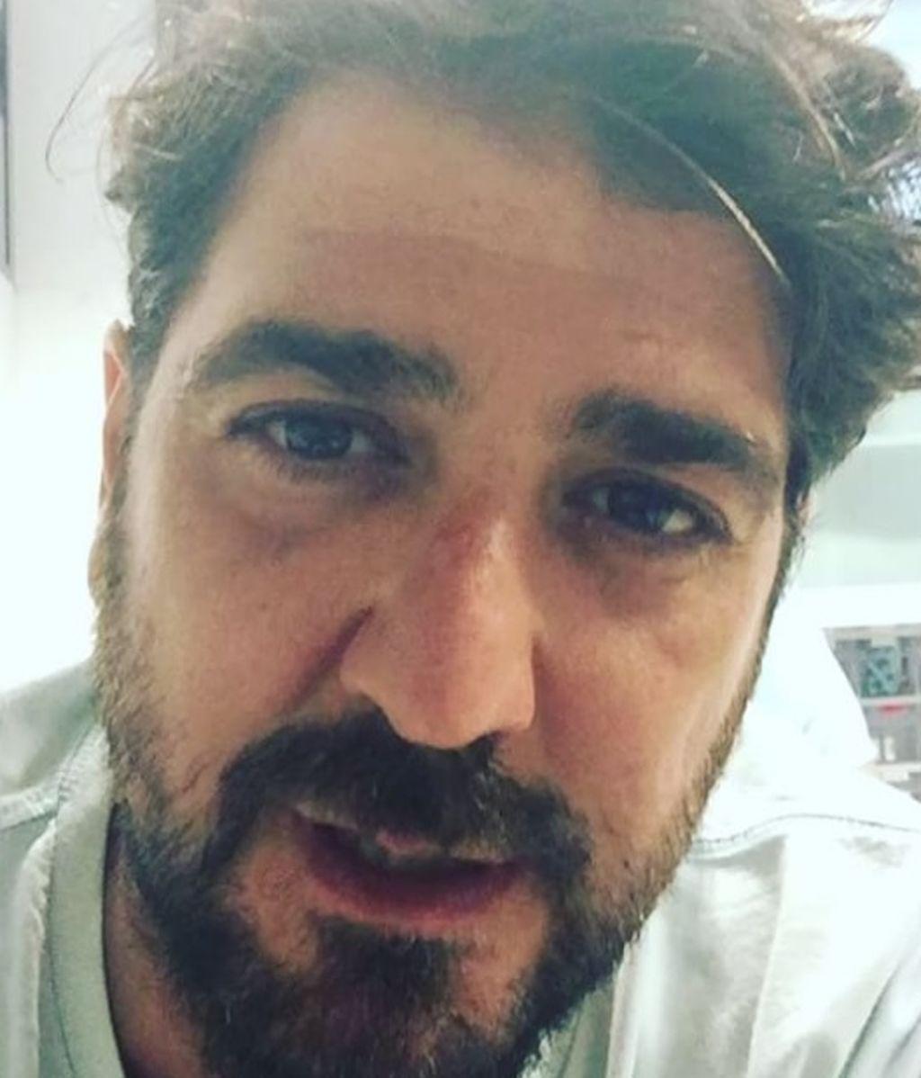 """Antonio Orozco se rompe el tobillo y sigue el concierto: """"Del escenario no me baja nadie"""""""