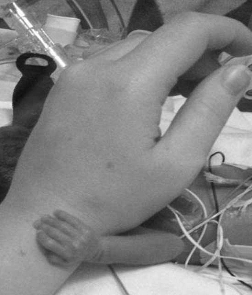 El bebé prematuro que agarra a la enfermera