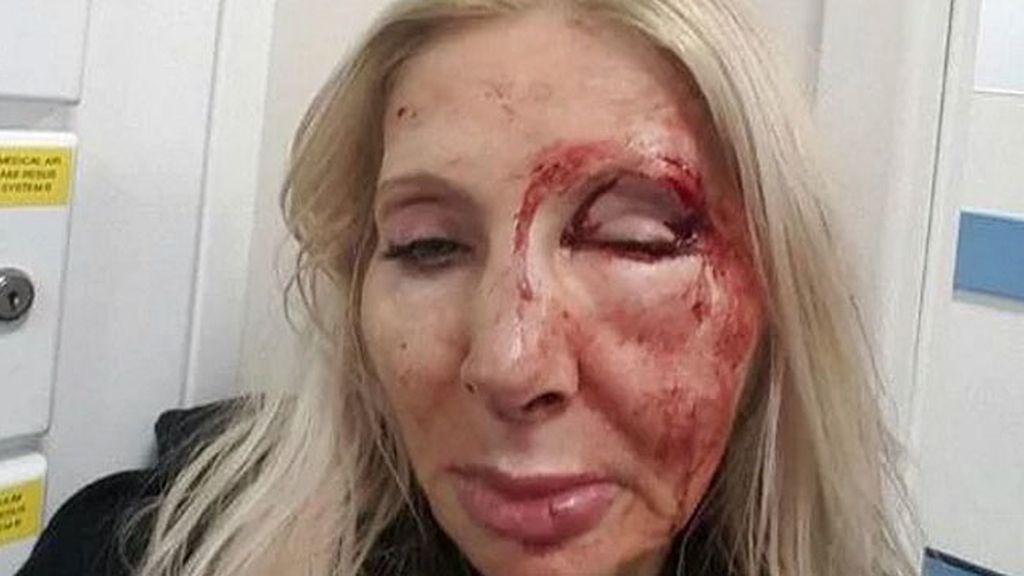 Le pega una paliza a una turista tras intentar ligar con ella