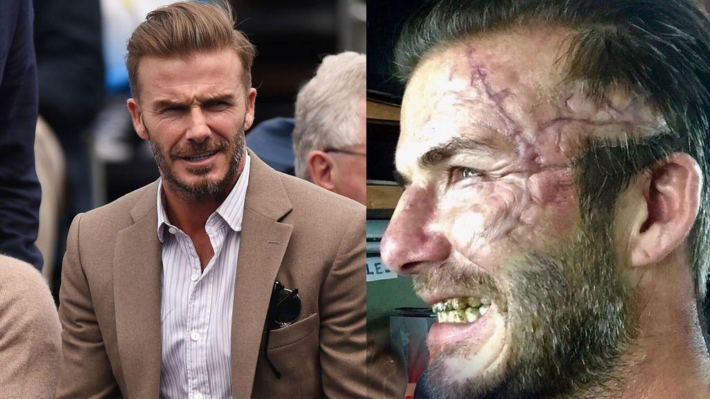 ¿Qué le ha pasado a Beckham? Muestra una escalofriante cicatriz