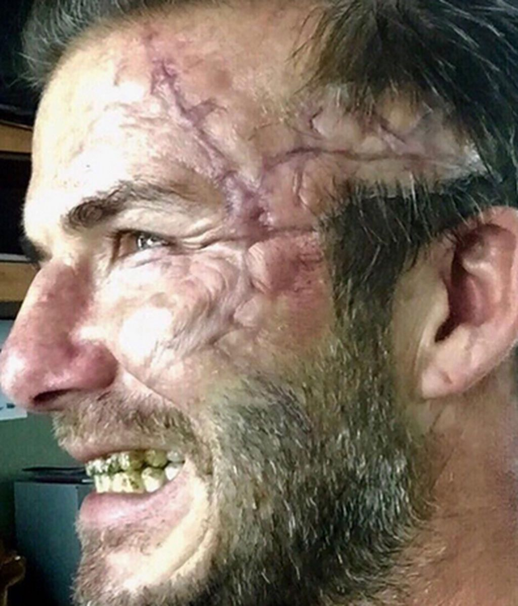 ¿Qué le ha pasado a Beckam en la cara?