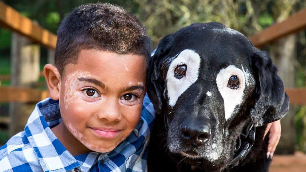 La tierna historia de un niño y un perro con la misma enfermedad