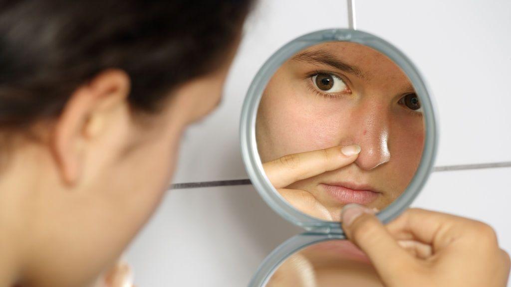 Adiós al acné: científicos crean una vacuna contra los granos