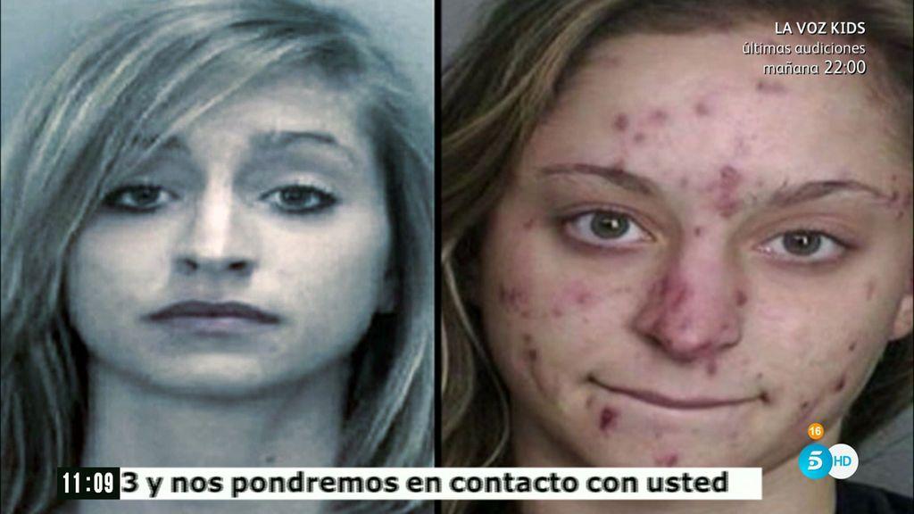 Así es el antes y el después de consumir cristal meth, la