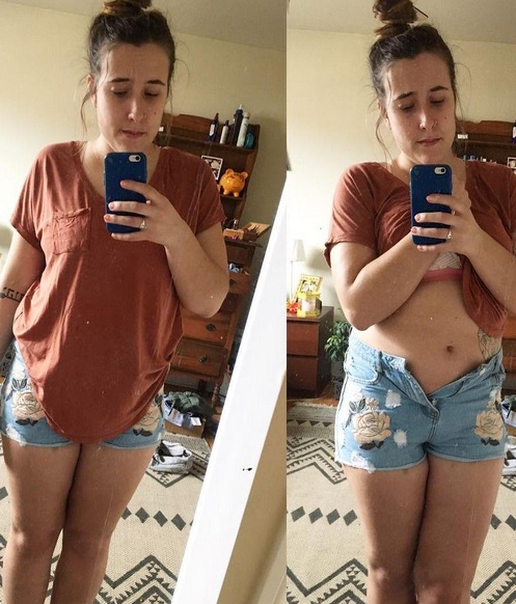 Publica una fotografía en Instagram celebrando su recuperación de la anorexia