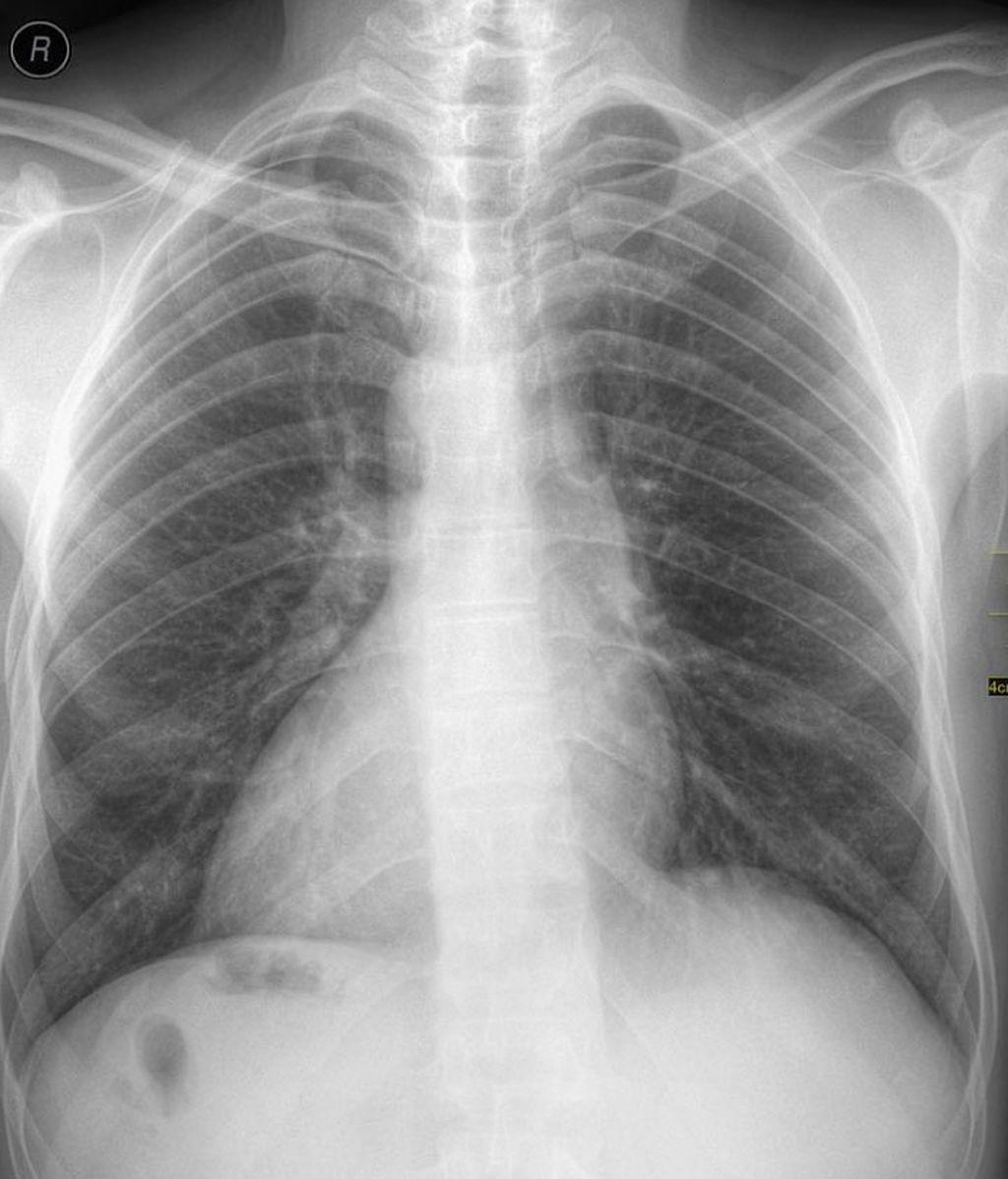 ¿ Qué es la cardiopatía del corazón al revés?