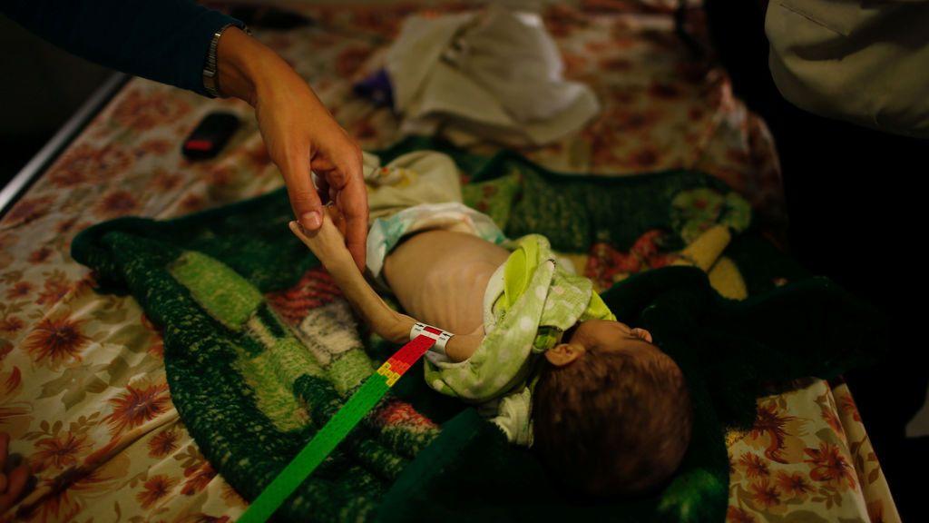 La desnutrición infantil toma Irak