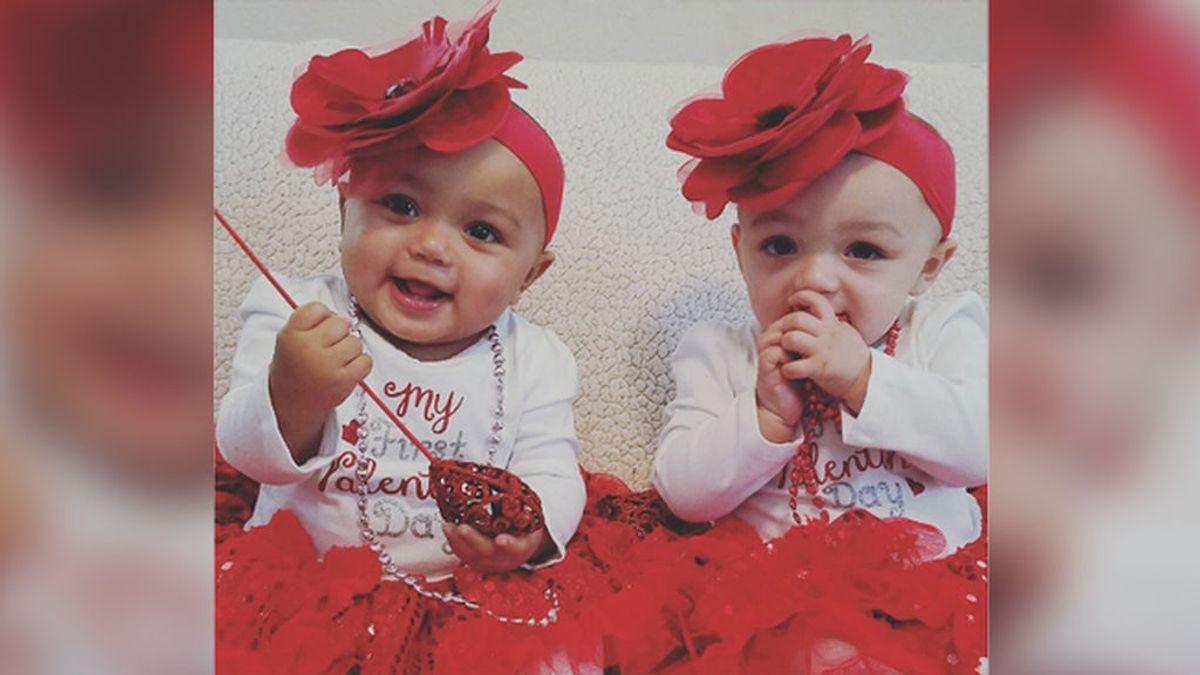 ¡Las gemelas de distinto color más famosas de Internet cumplen un año!