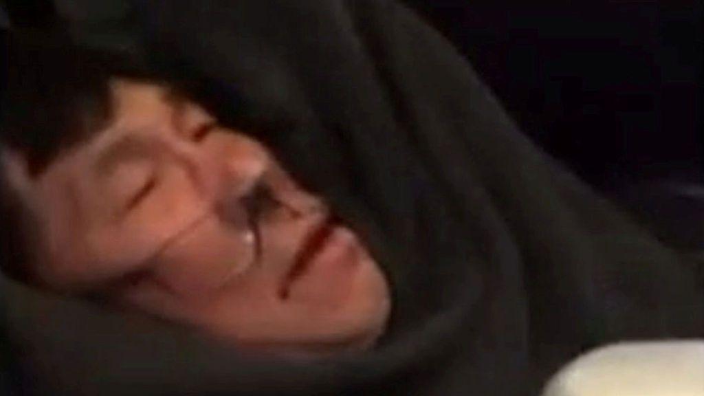 United Airlines y el pasajero al que echó por sobreventa hacen las paces