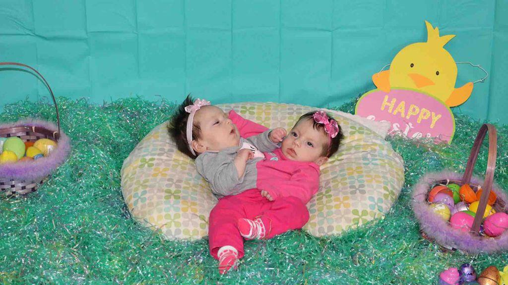 Así lucen las pequeñas gemelas siamesas, después de que los médicos aconsejaran que abortara