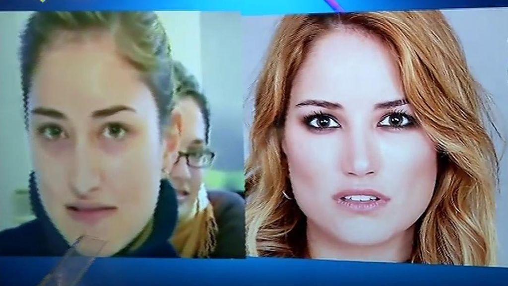 El antes y el después de Alba Carrillo: retoques en nariz, barbilla, labios y pómulos