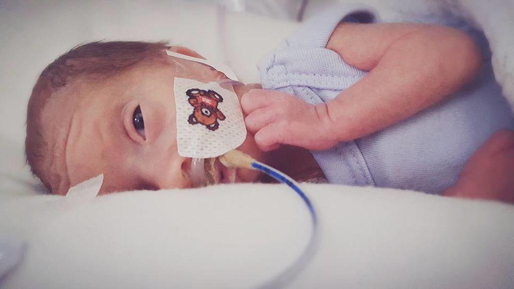La lucha de un bebé microprematuro
