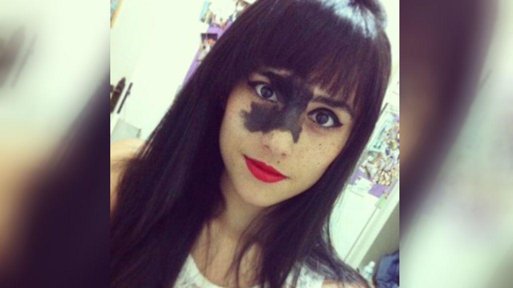 La historia de superación de una joven con una marca de nacimiento en la cara