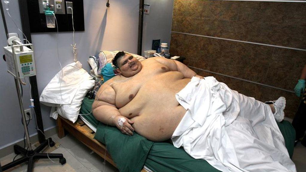 Juan Pedro Franco, el hombre más obeso del mundo, supera con éxito la operación
