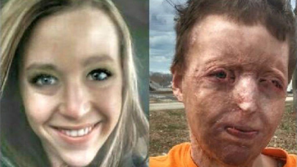 Una madre sufre graves quemaduras, su marido le abandona y se queda sin casa
