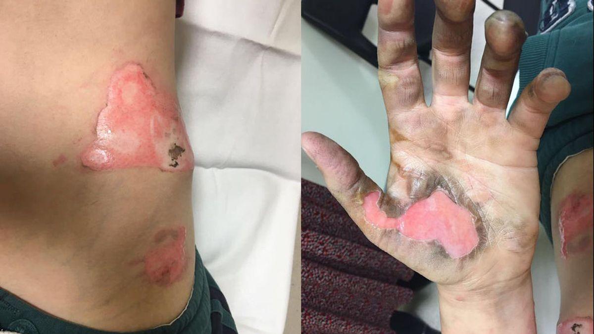 Una mujer sufre quemaduras de tercer grado al explotarle un cigarrillo electrónico