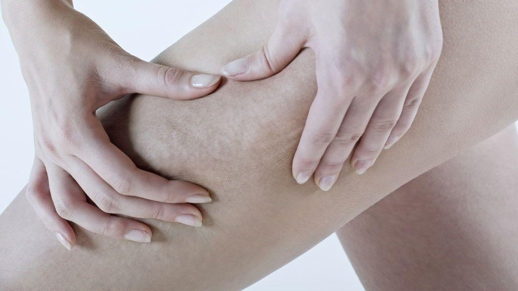 La enfermedad que afecta al 10% de las mujeres y desconcierta los expertos