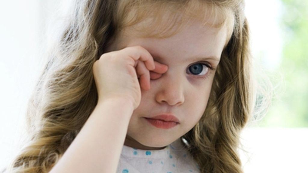 Seis efectos secundarios de frotarse los ojos