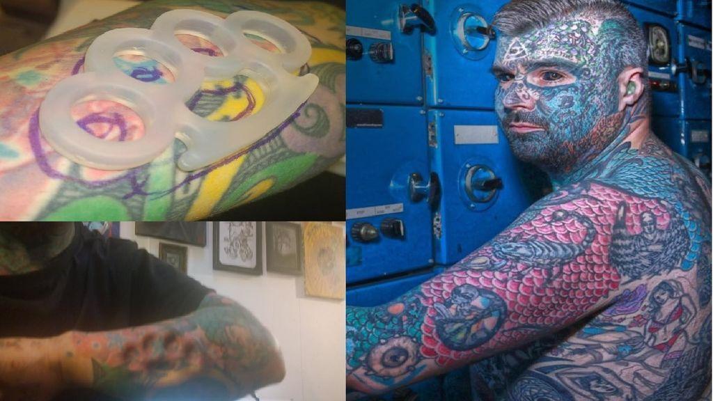 'El rey de la tinta' podría perder su brazo por implantarse un puño americano