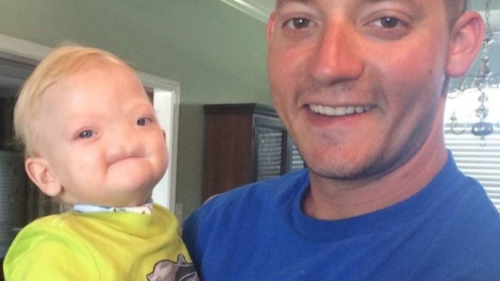 Muere a los dos años un niño que nació sin nariz ni sistema olfativo