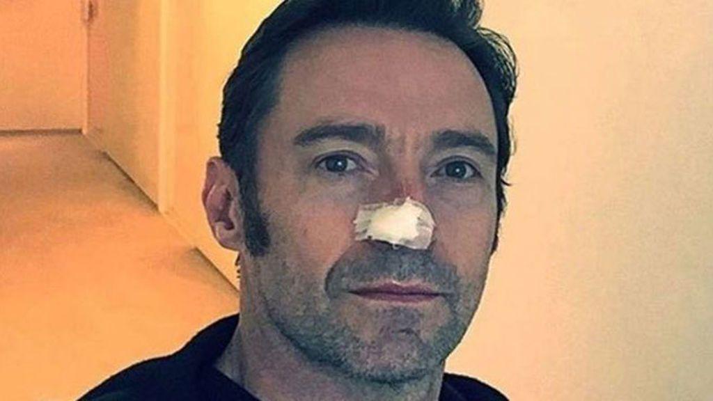 Hugh Jackman tiene cáncer de piel: un oncólogo nos dice cómo protegernos