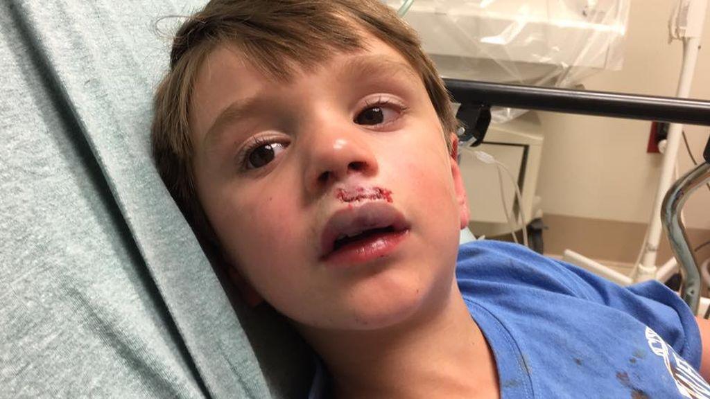 Un niño acaba en el hospital y con 30 puntos por un accidente jugando con un spinner
